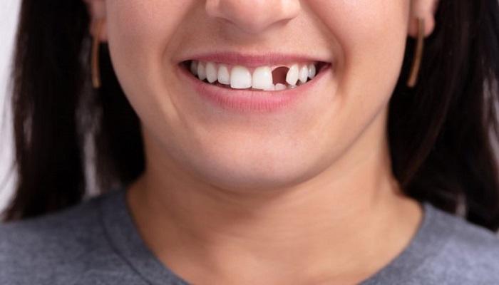 Mơ gãy răng có phải mang đến điềm báo dữ, bạn cần hết sức phòng tránh không?